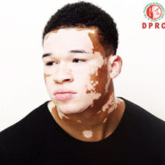 Albinism (Birthmarks and Other Skin Pigmentation Problems)