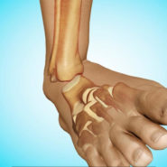 Ankle Dislocation (Dislocated Ankle (Ankle Dislocation))