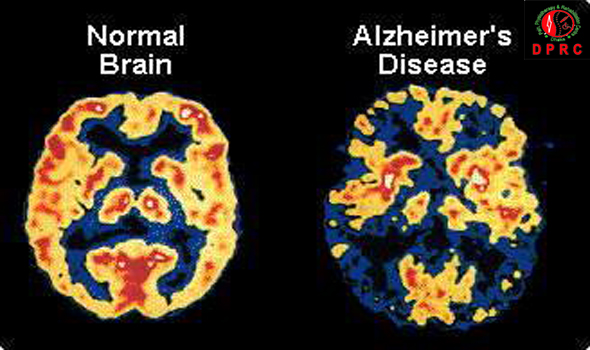 alzheimer's disease causes including current and Literature review current  the most common cause is alzheimer disease alzheimer disease accounts for 60 to 80 percent of all cases of dementia  these include.